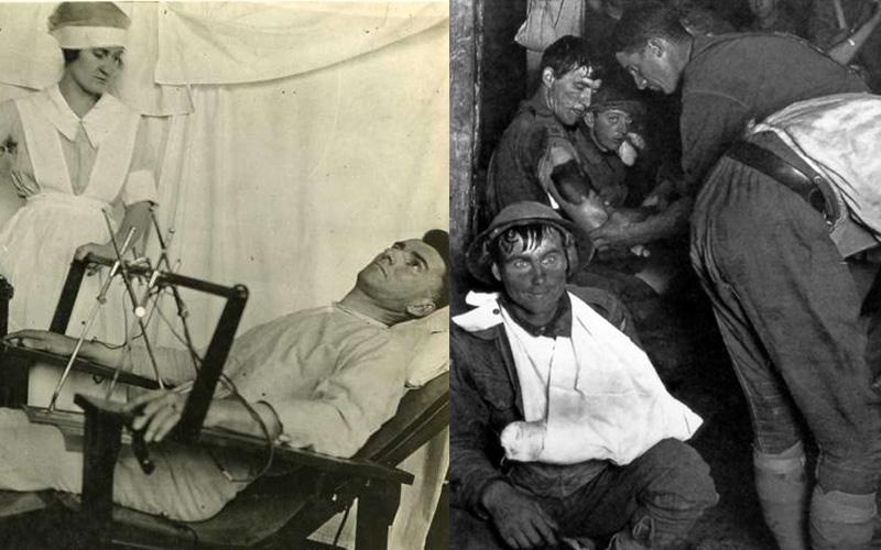 這群士兵參加一次世界大戰後集體得了一種「無法解釋的怪病」,看到他們詭異抽搐的樣子大家背脊都發涼了...