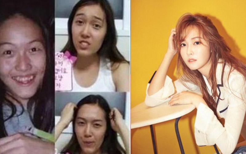 韓媒爆明星整容排行榜!這些女星上榜,第一名差距讓人驚掉下巴:沒整不能看