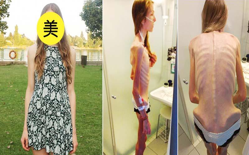 180公分正妹患厭食症「暴瘦到30公斤」瀕死,現擺脫骷顱人重拾「美麗自信笑容」感動網友!