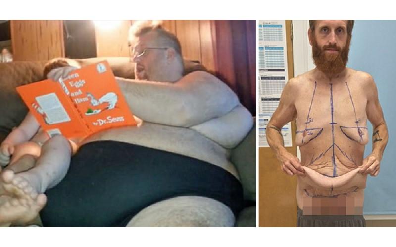 不想兒子看著墓碑長大!228公斤父親瘋狂減掉135公斤,除掉13KG贅皮現在長這樣變帥了!