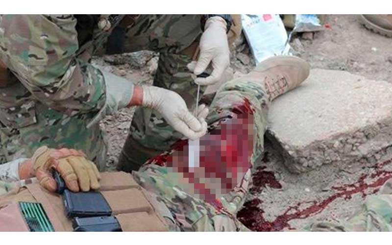 前線士兵受傷後,同伴急救的方式竟然是打針!看到針筒裡的物品一定會你疑惑竟然是..