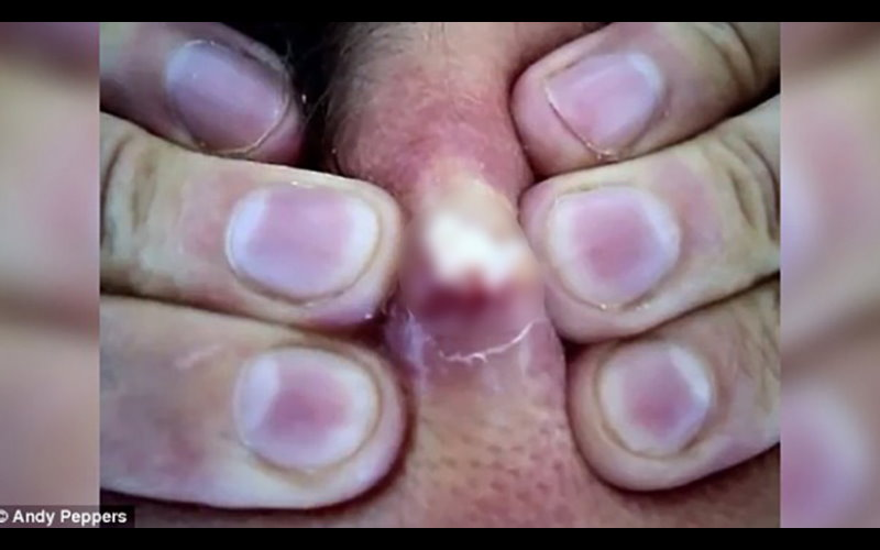 這名男子終於擠掉了脖子上20年的陳年痘痘,蹦出來的那瞬間...讓人徹底傻眼了。
