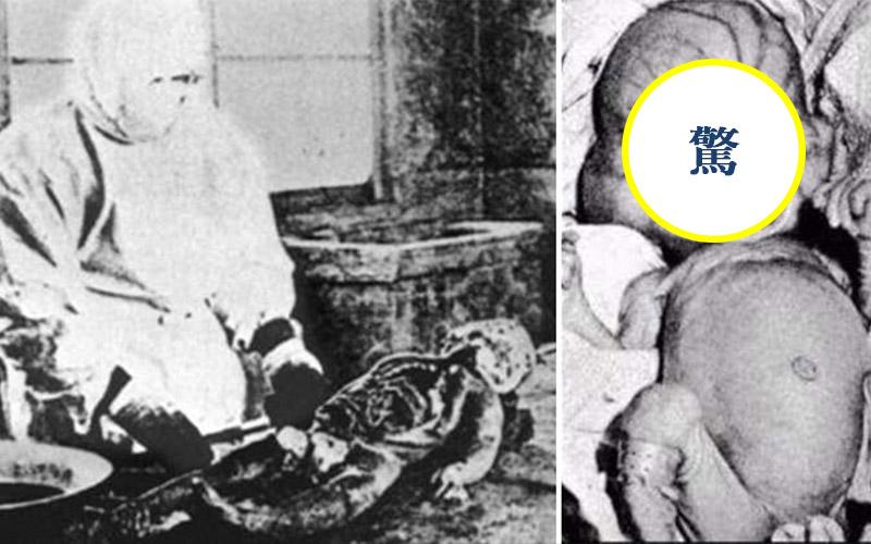 日本人最不願揭開的一段黑暗歷史!「731秘密部隊」殘酷生化武器人體實驗照片曝光後大家都嚇傻了...