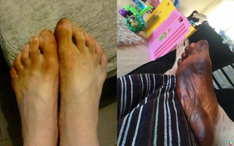 男子一覺醒來發現「腳變成黑色」!以為自己患上怪病,嚇得叫救護車才發現真相竟然是...