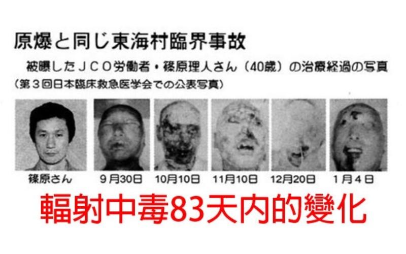 18個政府絕不會向民眾承認的「核事故真相」,關於廣島的「鱷魚人」真相是...
