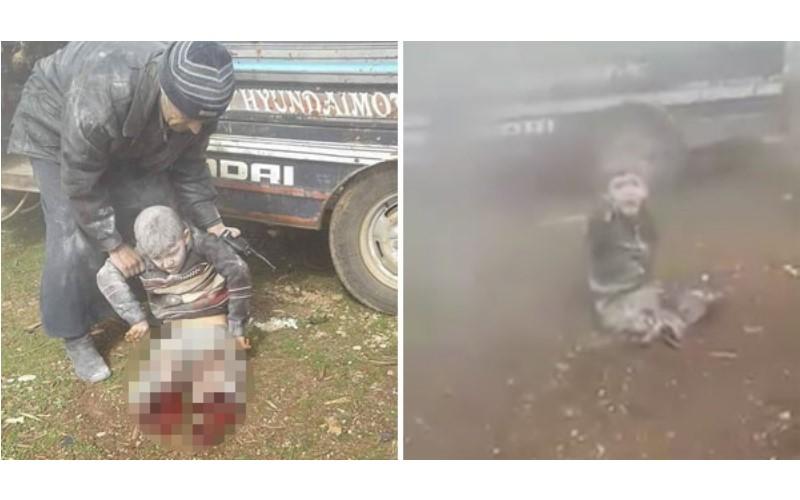 敘利亞8歲男童雙腿被炸彈炸飛癱地,他卻只能無助喊出的「這句話」...