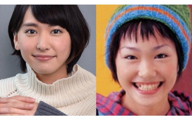 為何日本人的牙齒「普遍很凌亂」?專家專業分析原因...好有道理啊!