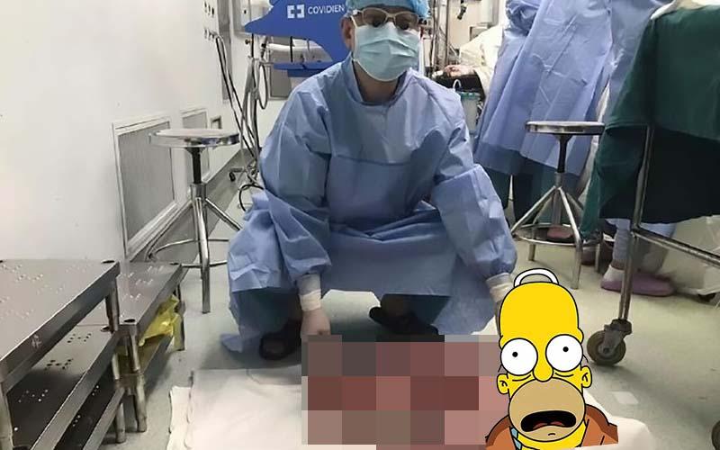 他20多年來經常便秘,甚至腹痛到爬不起來,結果醫生從他身體裡取出「巨型屎袋」?險些爆炸!