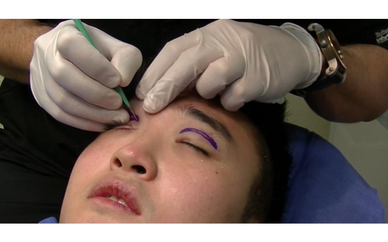 想變雙眼皮?揭密「超地獄手術過程」看完後突然覺得單眼皮也不錯XD?