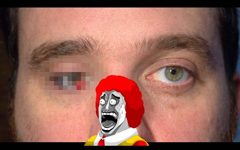 這位男子將自己的眼球換成「微型攝影機」,從此人生180度大轉變,但卻有人覺得這是不是侵犯隱私?