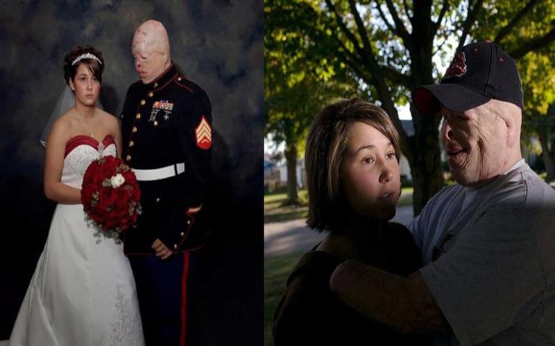 海陸戰軍毀容卻如願與女友完婚!大家一看照片卻發現「怪怪的」隔年果然離婚了...(9P)