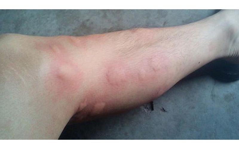 破解坊間迷思!終於明白「為何蚊子總是只咬我」的7個原因!