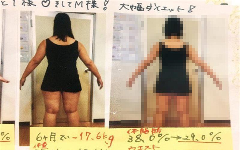 減肥廣告成效超驚人,「75→57kg」瘦身前後對比圖遭眼尖網友識破:太不專業了!