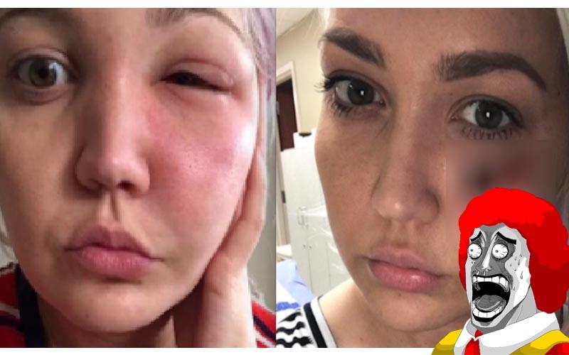 她某天醒來發現自己的臉異常腫脹,沒想到過幾天臉上竟然掉了一塊肉!!