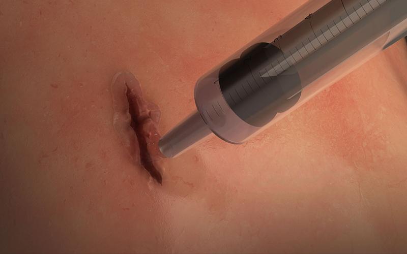 不必動手術縫線!「超級膠水」只需60秒就能復原傷口,連器官也可以適用整個超猛!(影)