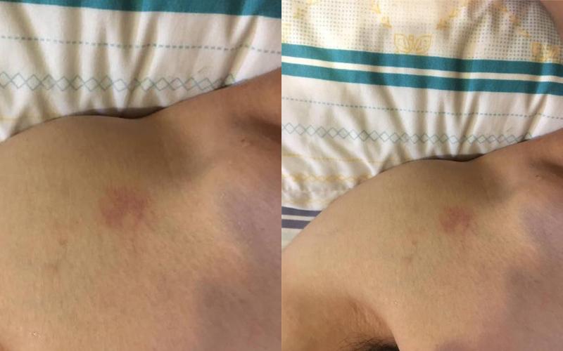 男友教召5天回來肩膀上多了一個像「草莓」的印記,她疑惑PO網 網友全歪樓!