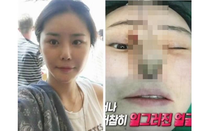 韓女做「隆鼻手術」告知醫生無法呼吸  醫生卻堅持說沒事,幾天後鼻腔皮肉掀起流出綠膿.....