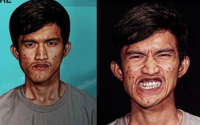 他因先天臉部畸形「醜到沒朋友」 整型後的他一走出來「改頭換面」反讓女友後悔送他去變臉