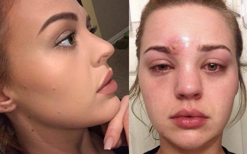 正妹以為眼睛上面的只是普通痘痘,擠掉後她卻「差點眼瞎」嚇到警告大家不要學她!