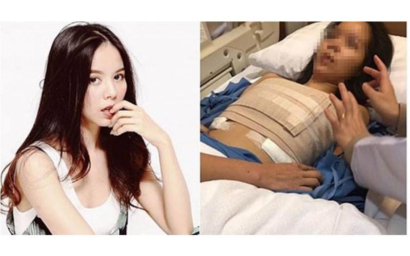 女歌手遇無良醫生!隆乳隆到命危「雙乳血流不止」:存活率剩10%!
